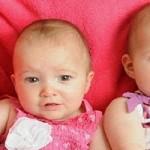 Gemelli uniti per la vita: miracolo in gravidanza