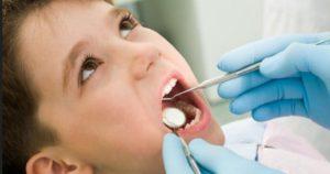 Le carie dentali, cosa non sappiamo? Quello che i dentisti non possono dirci…