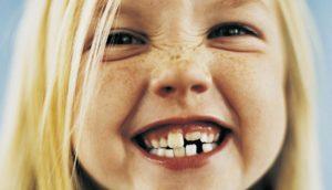 denti-storti-bambina