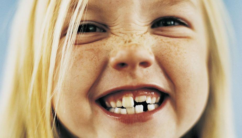 I denti e la rieducazione neuromuscolare