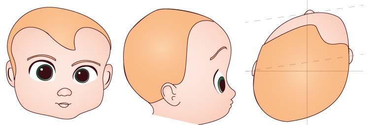 Come Riconoscere E Prevenire La Plagiocefalia I Parte