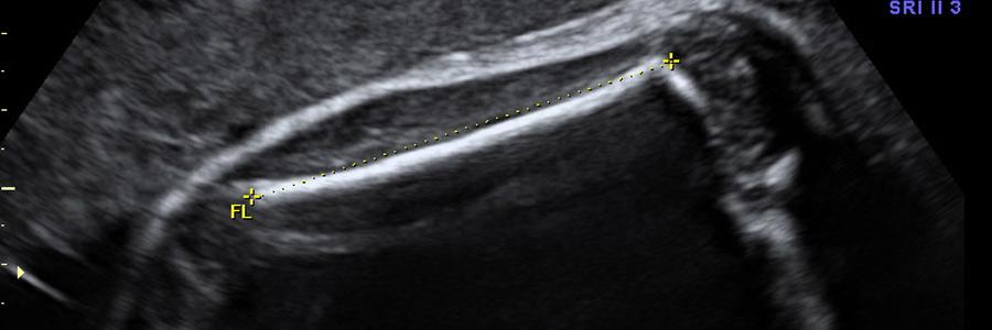 calcolo-lunghezza-feto-2