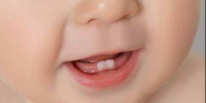 dentini-neonato