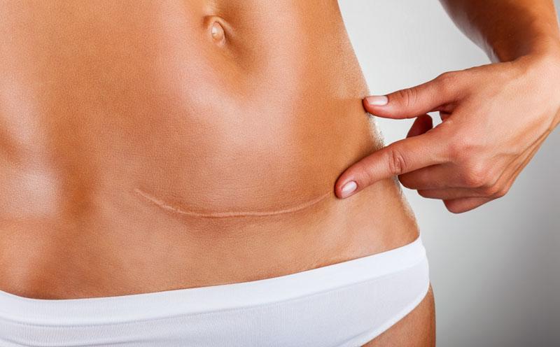 Massaggiare la cicatrice dopo un parto cesareo